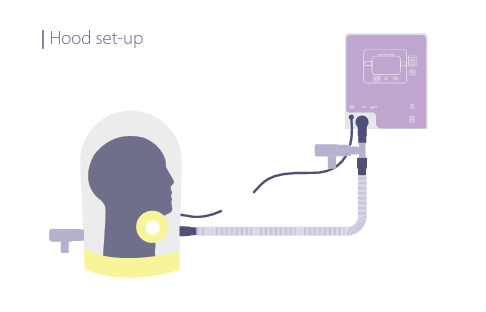 Image of CPAP breathing circuit setup with hood